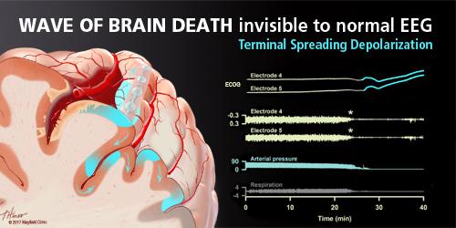 Brain Tsunami – Mayfield Brain & Spinal Column